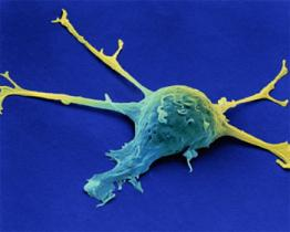 Il cancro vaginale, una malattia rara ma pericolosa
